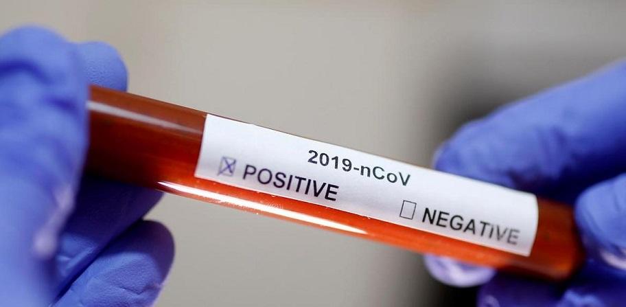 От ПСЖ обявиха за заразен играч с коронавирус 1