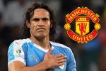 Кавани няма да може да дебютира за Ман Юнайтед в мача с Нюкасъл 4